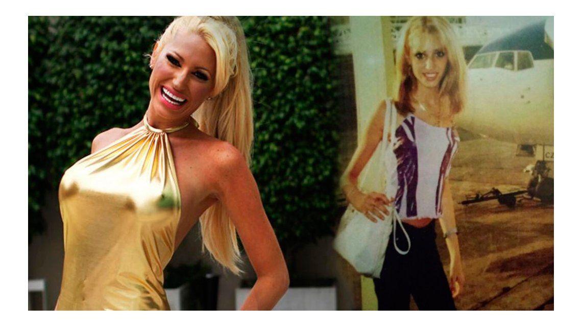Impactante: la foto de Vicky Xipolitakis cuando sufría anorexia
