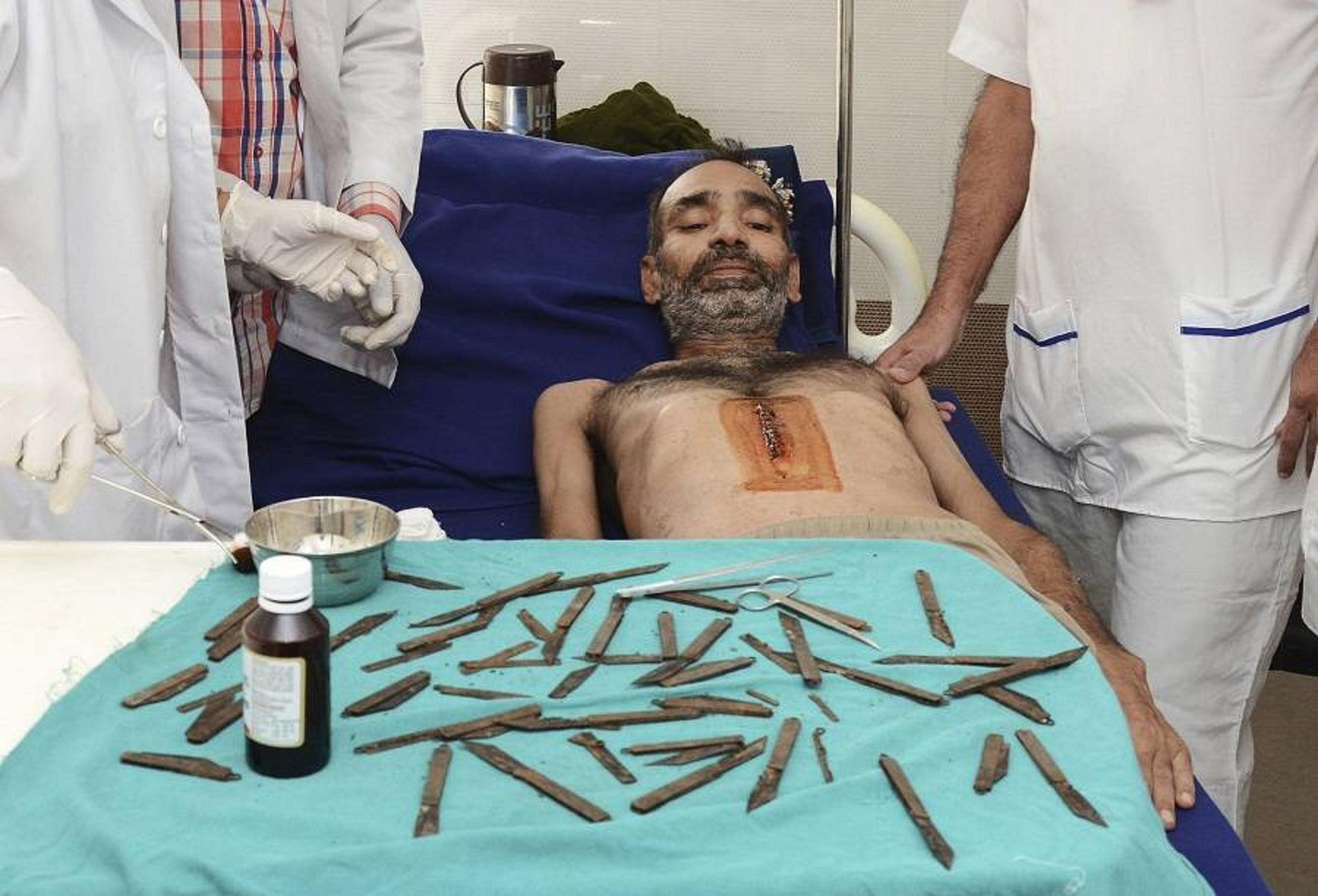 Fue al médico por un fuerte dolor abdominal y le terminaron sacando 40 navajas en la panza