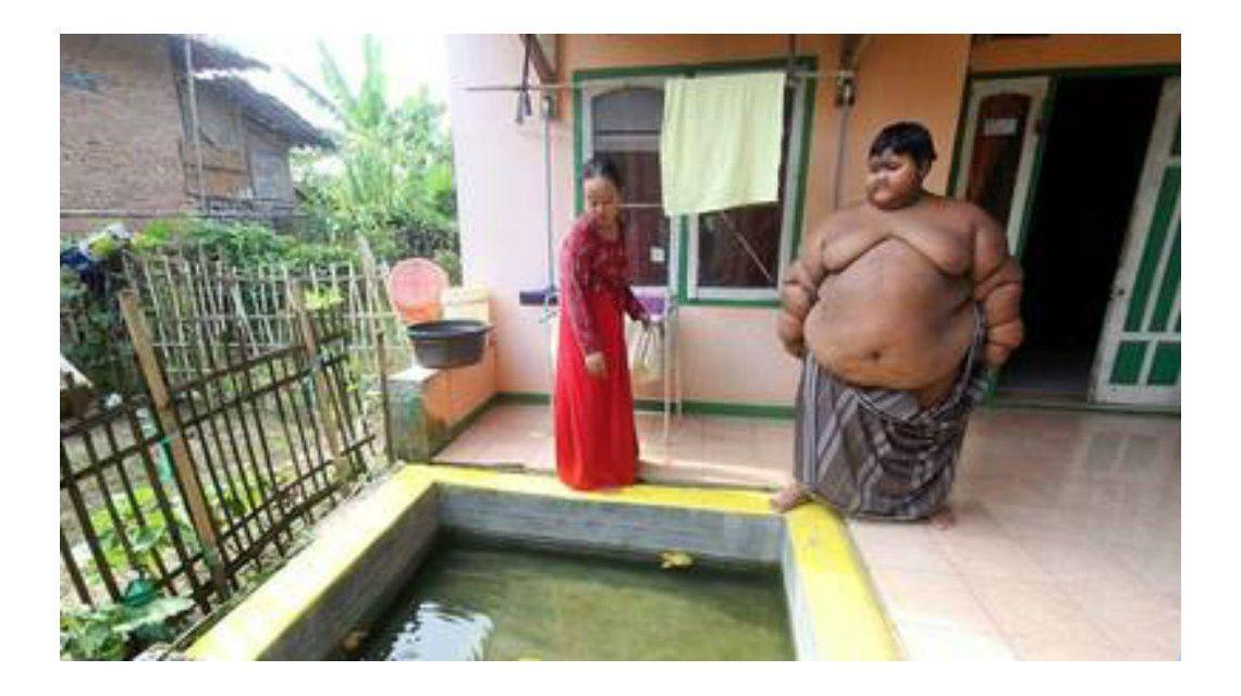 Indonesia: Pusieron a dieta al chico más gordo del mundo para que vuelva a la escuela