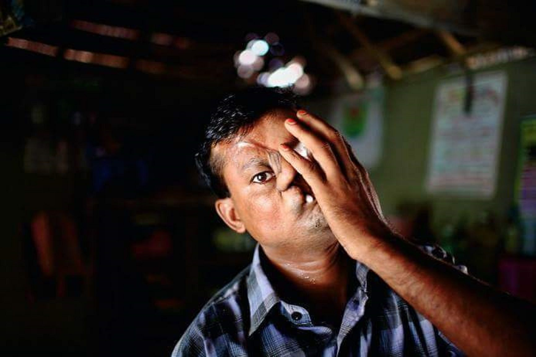 Un tigre le desfiguró la cara mientras dormía en un barco y lo discriminan