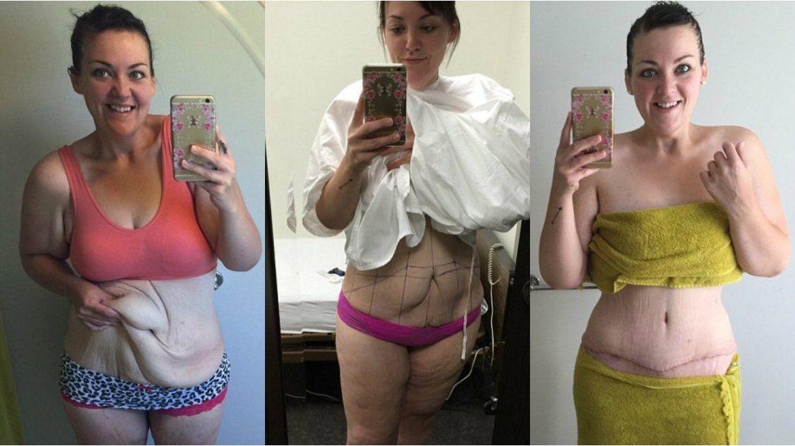 Perdió 95 kilos gracias a un bypass gástrico y su novio la plantó en el altar