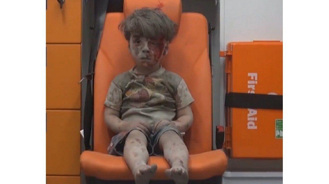 Otra tragedia golpeó a Omran, el nene sirio cuya foto se viralizó esta semana