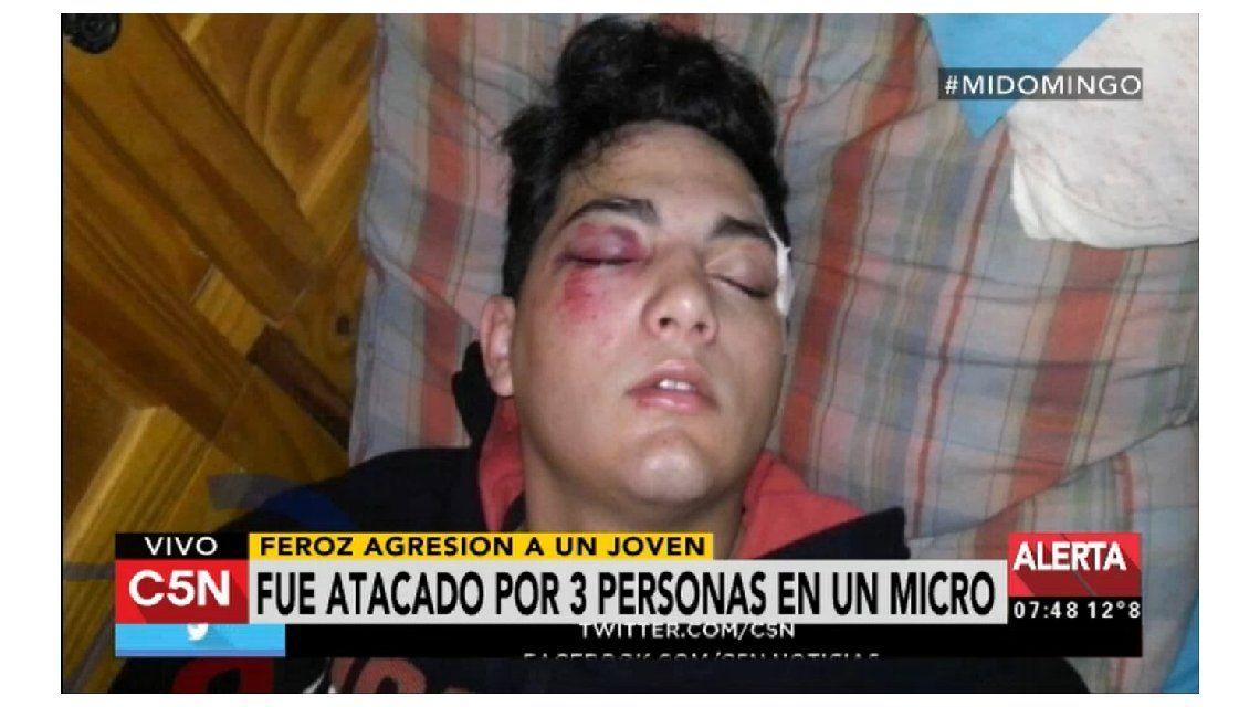 Feroz agresión en un colectivo: lo golpearon con un palo para robarle