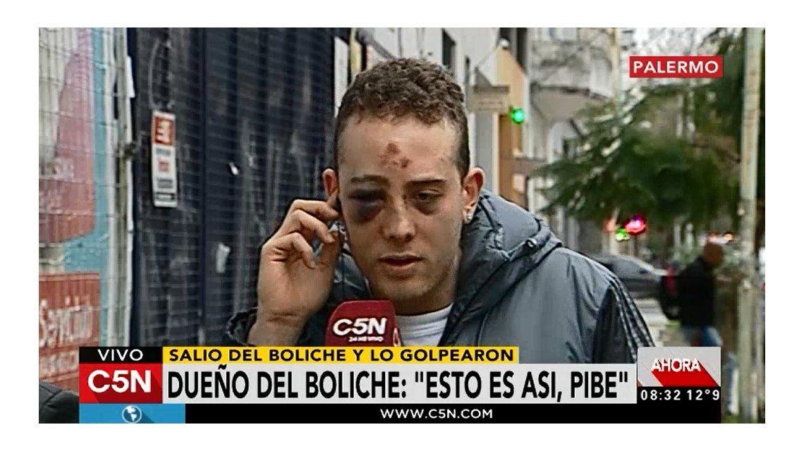 Habló el joven que recibió una brutal golpiza en un boliche: Casi me matan