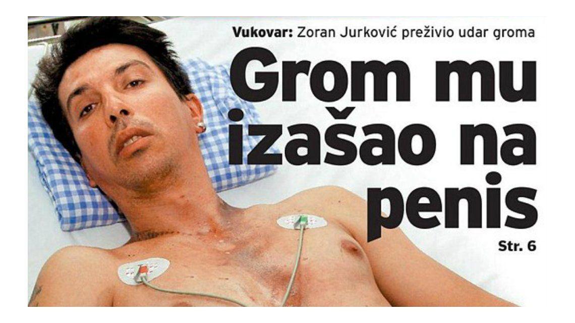 Un hombre se salvó de morir partido por un rayo gracias a su pene