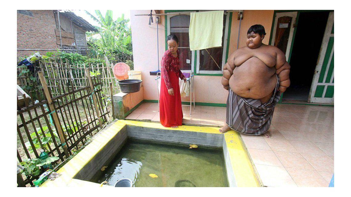 Temen por la vida del niño más obeso del mundo: pesa 192 kilos a los 10 años