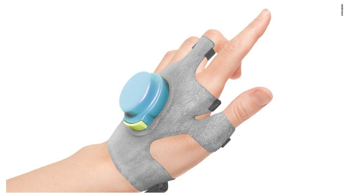 Crean un guante que reduce los temblores del Parkinson