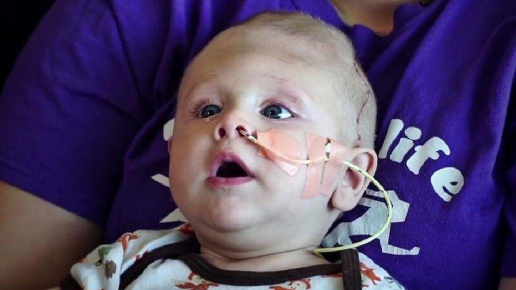 Bebé nació con el cerebro fuera de la cabeza, fue operado y se recupera