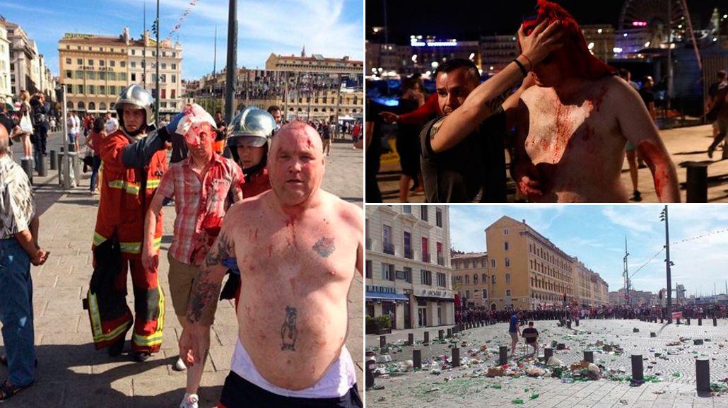 VIDEO: Nuevos incidentes violentos entre hooligans y rusos en Marsella