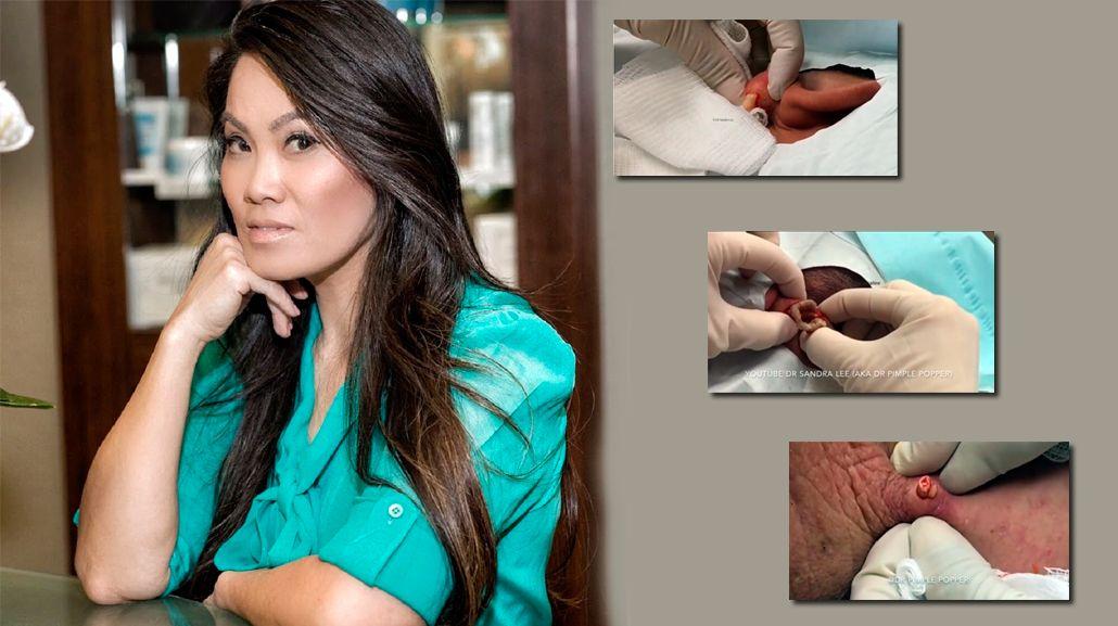 Te va a dar asco: conocé a la dermatóloga que se hizo famosa en Instagram