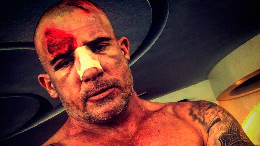 Así quedó el protagonista de Prison Break, tras un accidente en el set de filmación
