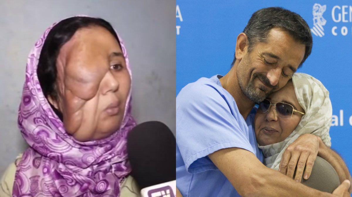 Su marido la repudió por su enfermedad, pero la operaron y recuperó la sonrisa