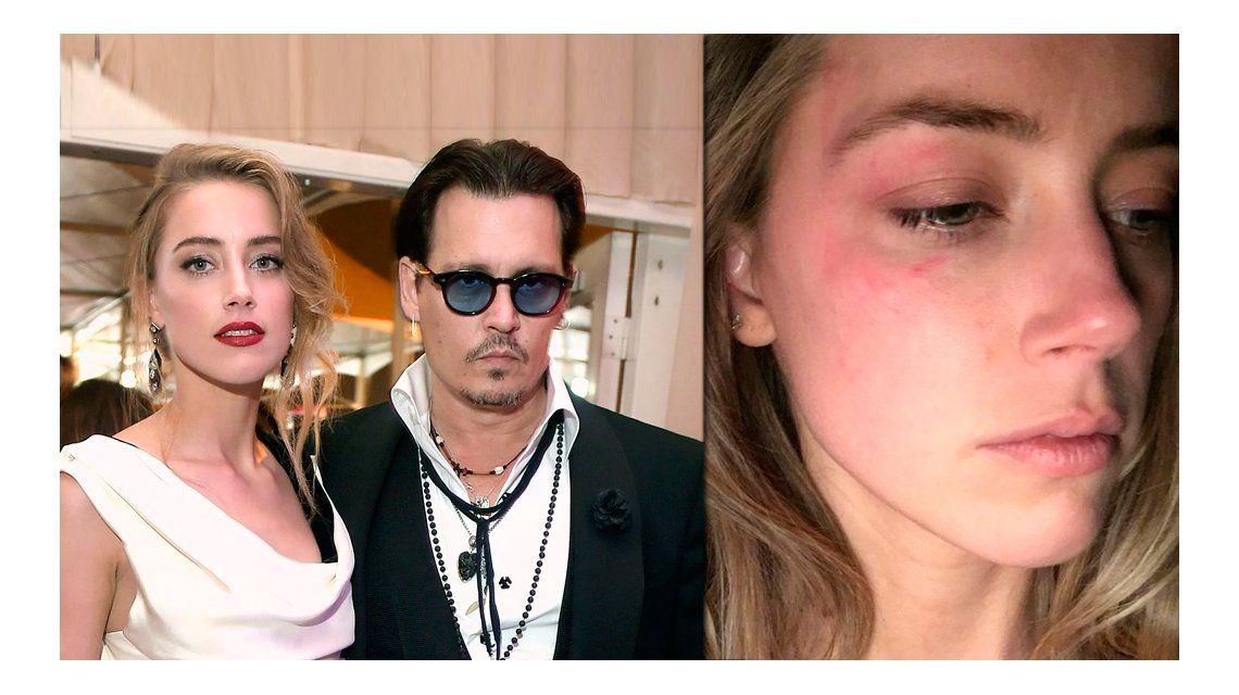 Johnny Depp, denunciado por haber golpeado a su esposa: la imagen que lo compromete