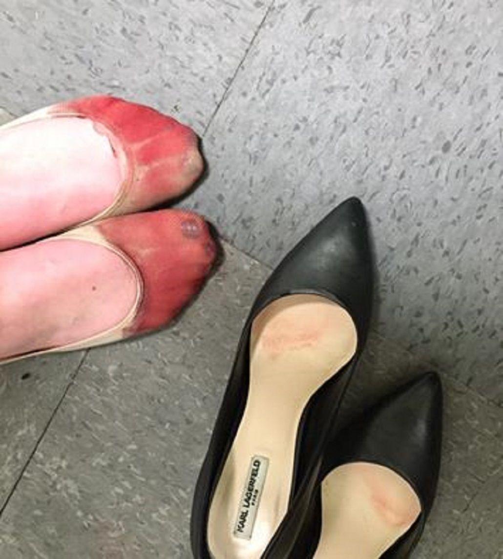 Machista y de la Edad Media: su jefe la obligó a usar tacones hasta sangrar