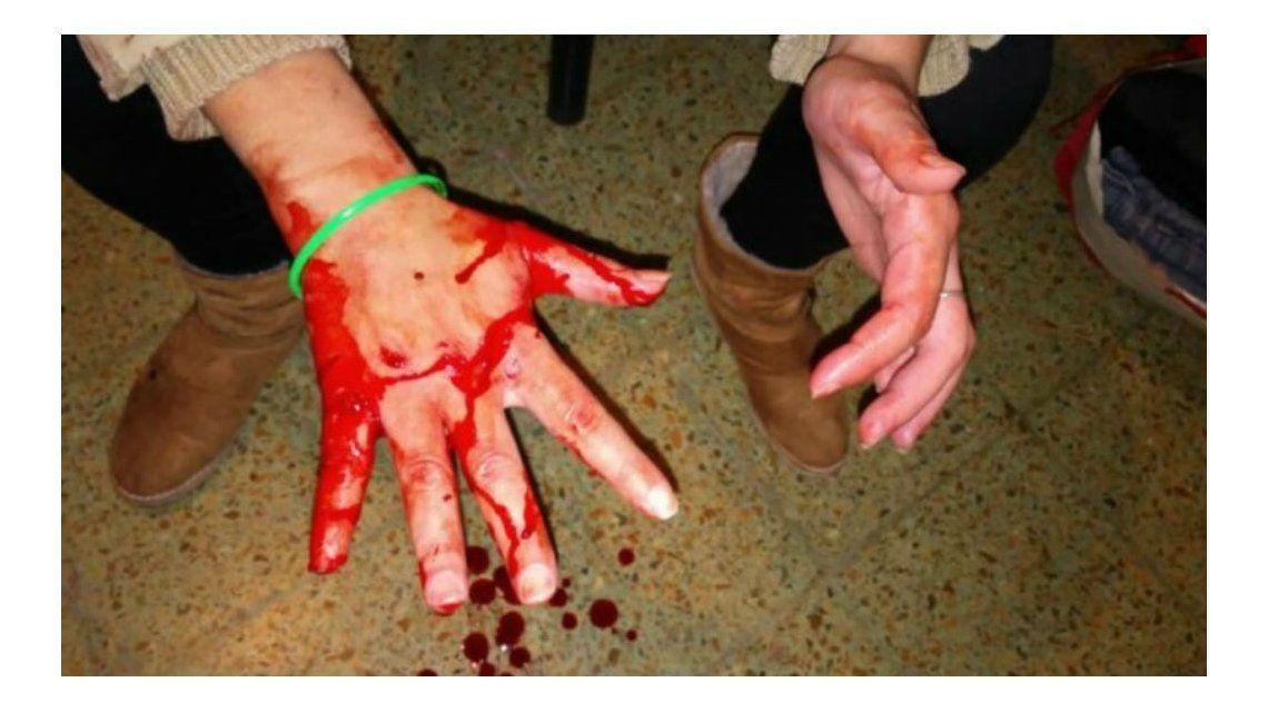 Una joven fue brutalmente golpeada por su novio y su suegra