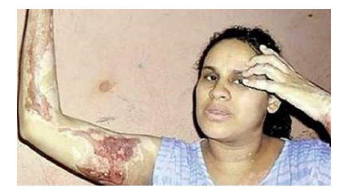 Ex director del INADI acusado por prender fuego a su pareja quedó libre y le volvió a pegar