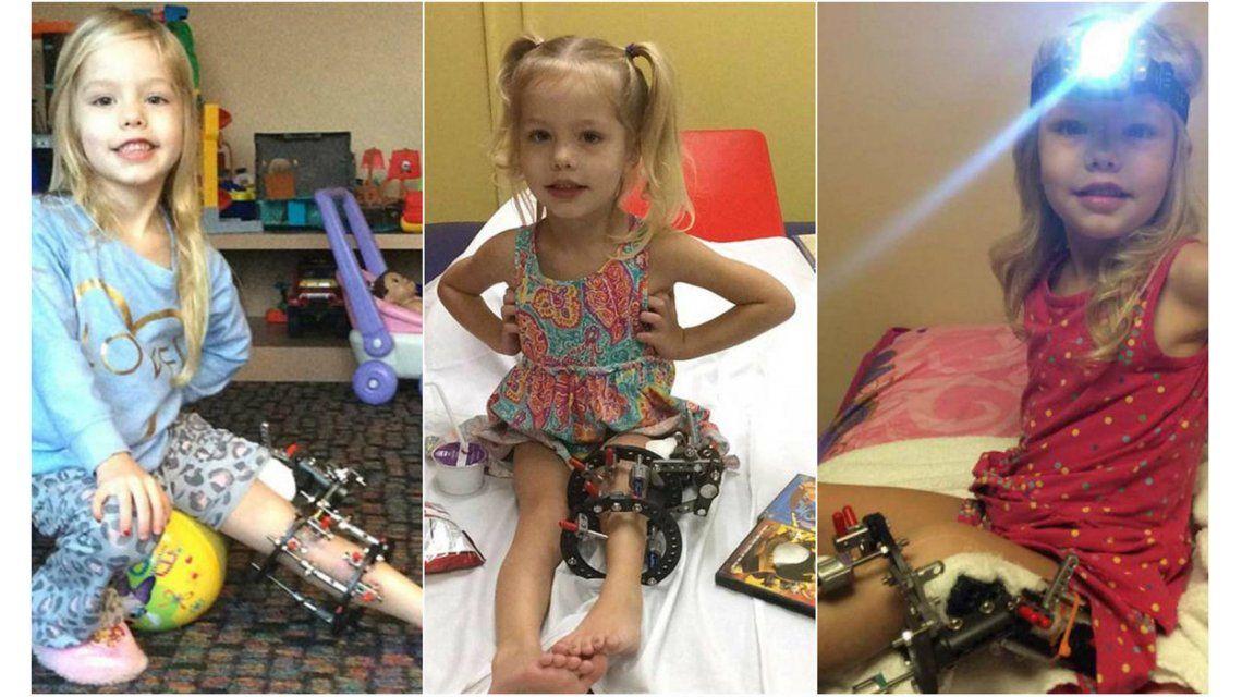 Desgarrador: le tuvo que fracturar la pierna a su hija para que no la amputaran