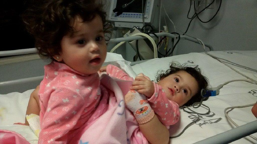 Operan en el hospital Posadas a las siamesas de 15 meses para intentar separarlas