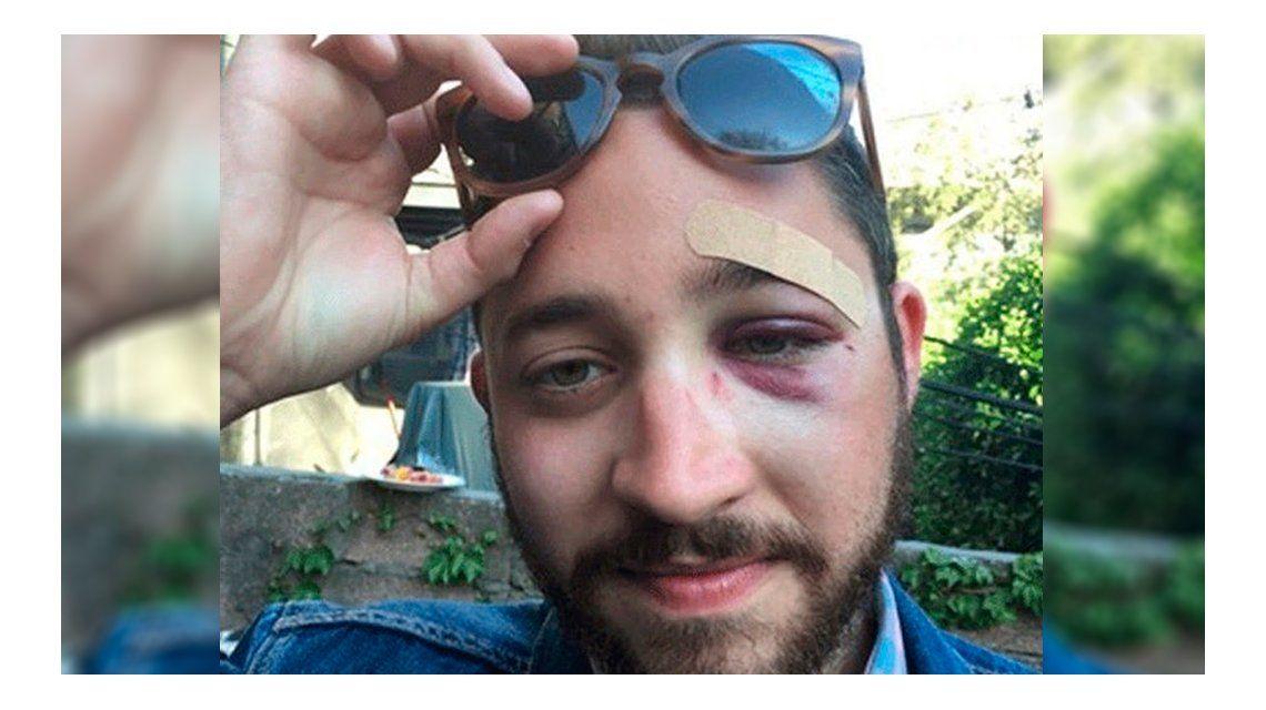 Recibió una paliza por parecerse a un famoso actor de Hollywood