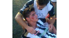 Jugadores fueron agredidos por hinchas del rival en un partido del Federal A