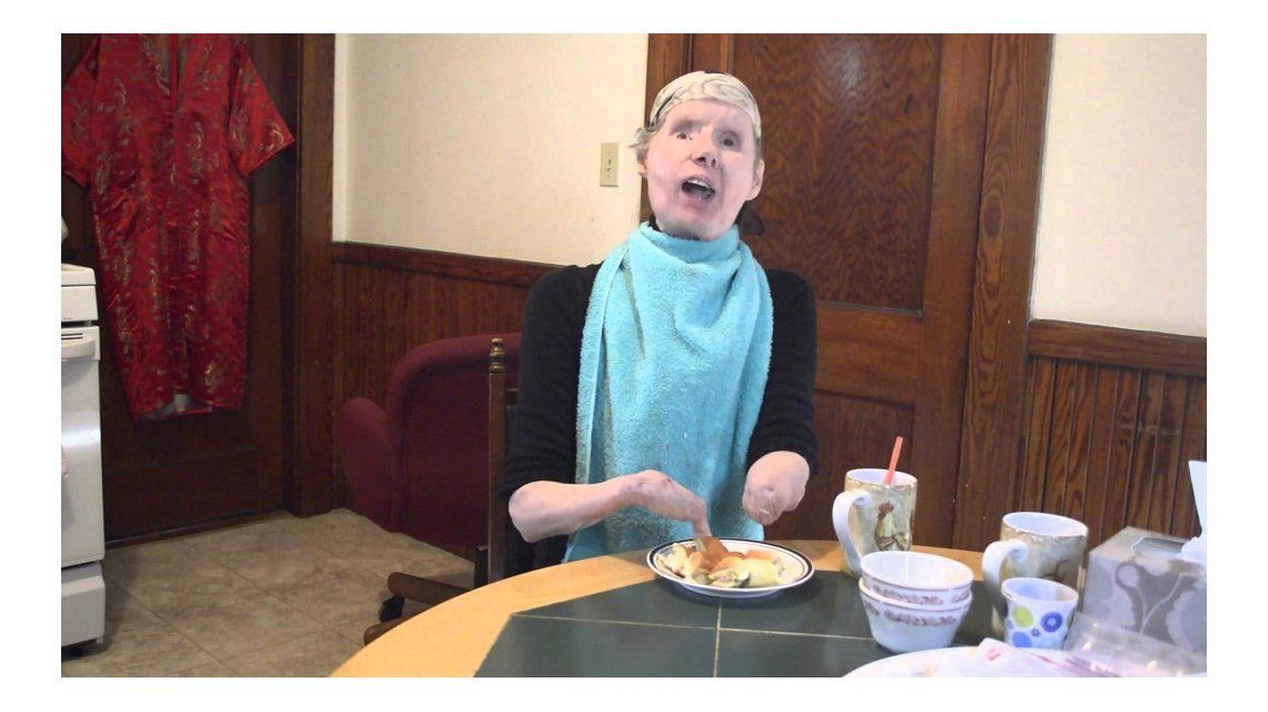 ¿Cómo vive la mujer que recibió un trasplante de cara hace cinco años?