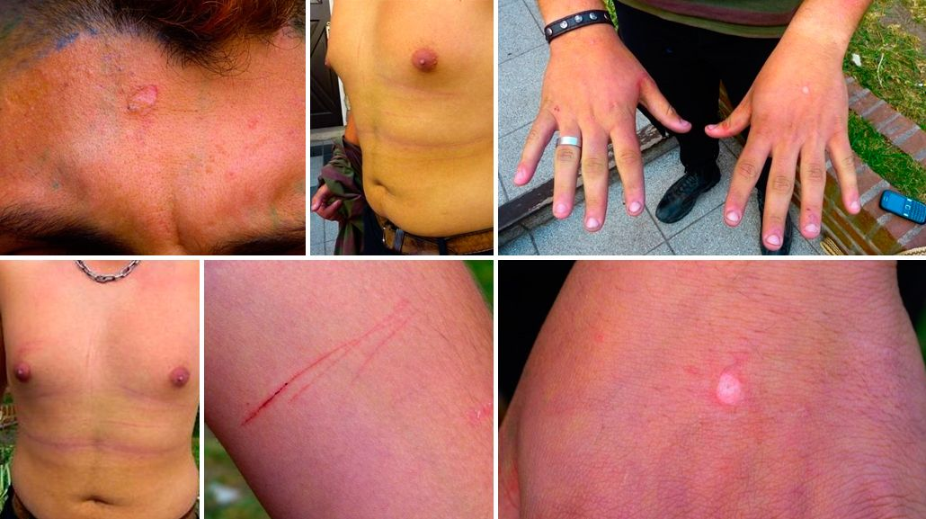 Miramar: denuncian a policías por secuestrar y torturar a un militante gay de 17 años