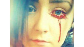 Una adolescente no para de sangrar por los ojos y nadie sabe las causas