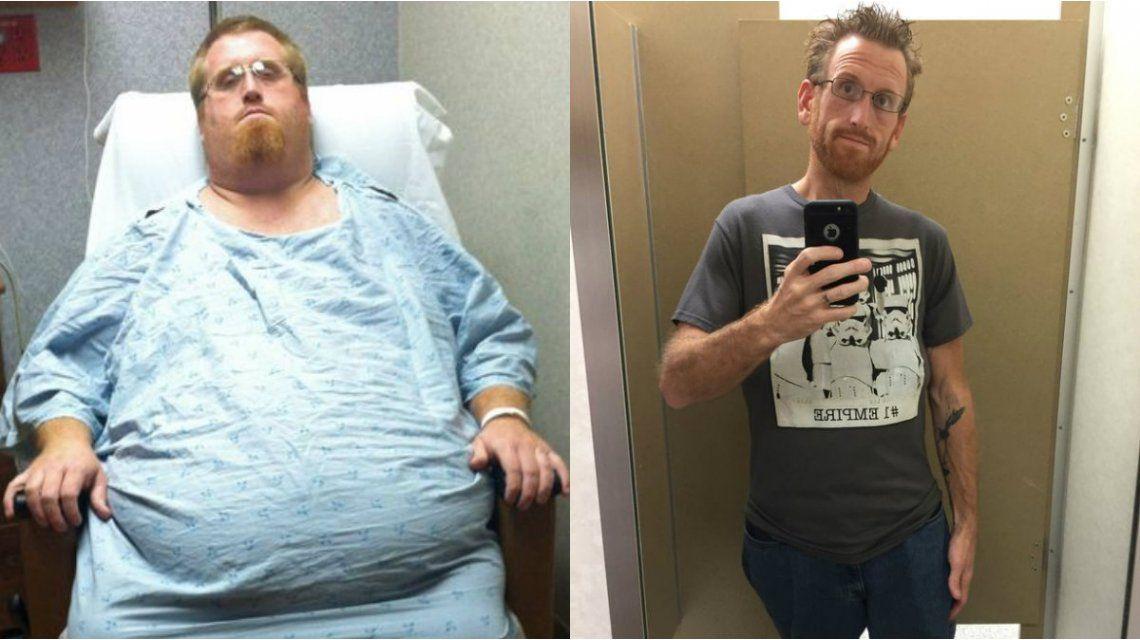 Bajó tanto de peso que lo acusaron de trucar sus fotos en Instagram