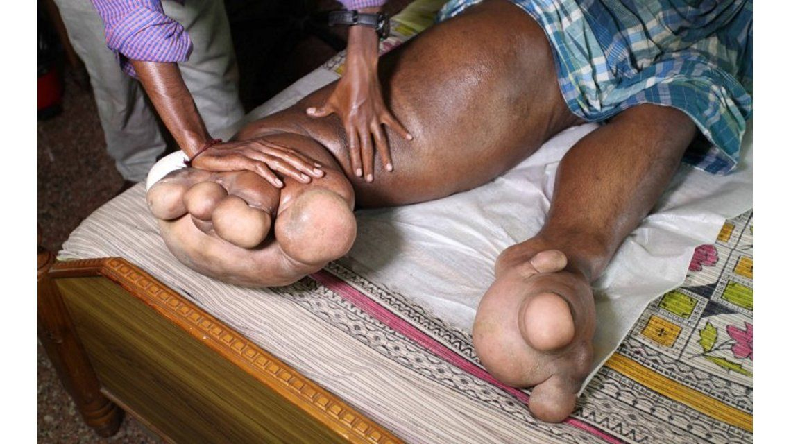 La historia del hombre con piernas de elefantes que pide ayuda para curarse