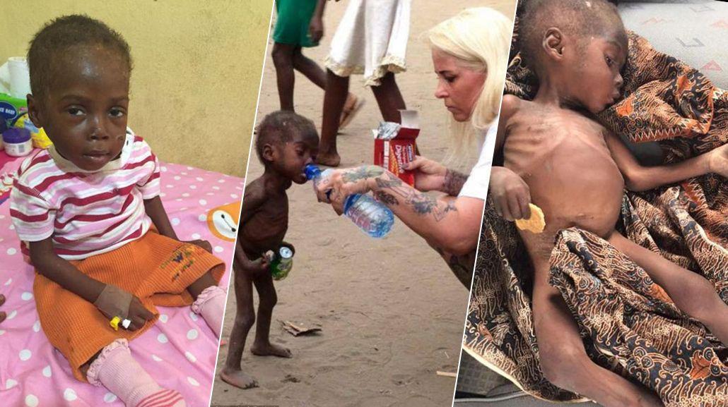Hope, el niño nigeriano al que sus padres abandonaron por ser brujo