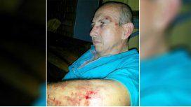 Le tocó bocina a un motociclista y recibió una brutal paliza