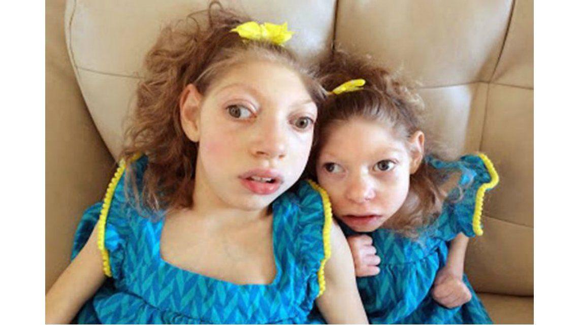 Dos hermanas con microcefalia sorprenden a los médicos con sus avances