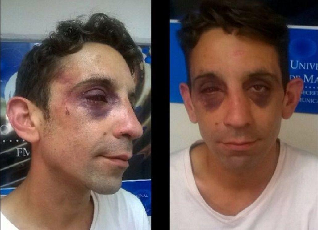 Habló el joven atacado por una patota: Me golpearon por ser gay y militante