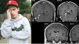 Le encontraron una larva en el cerebro y no murió por minutos