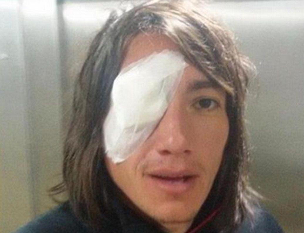 Habló Lugüercio tras la agresión: Me dan ganas de no jugar más