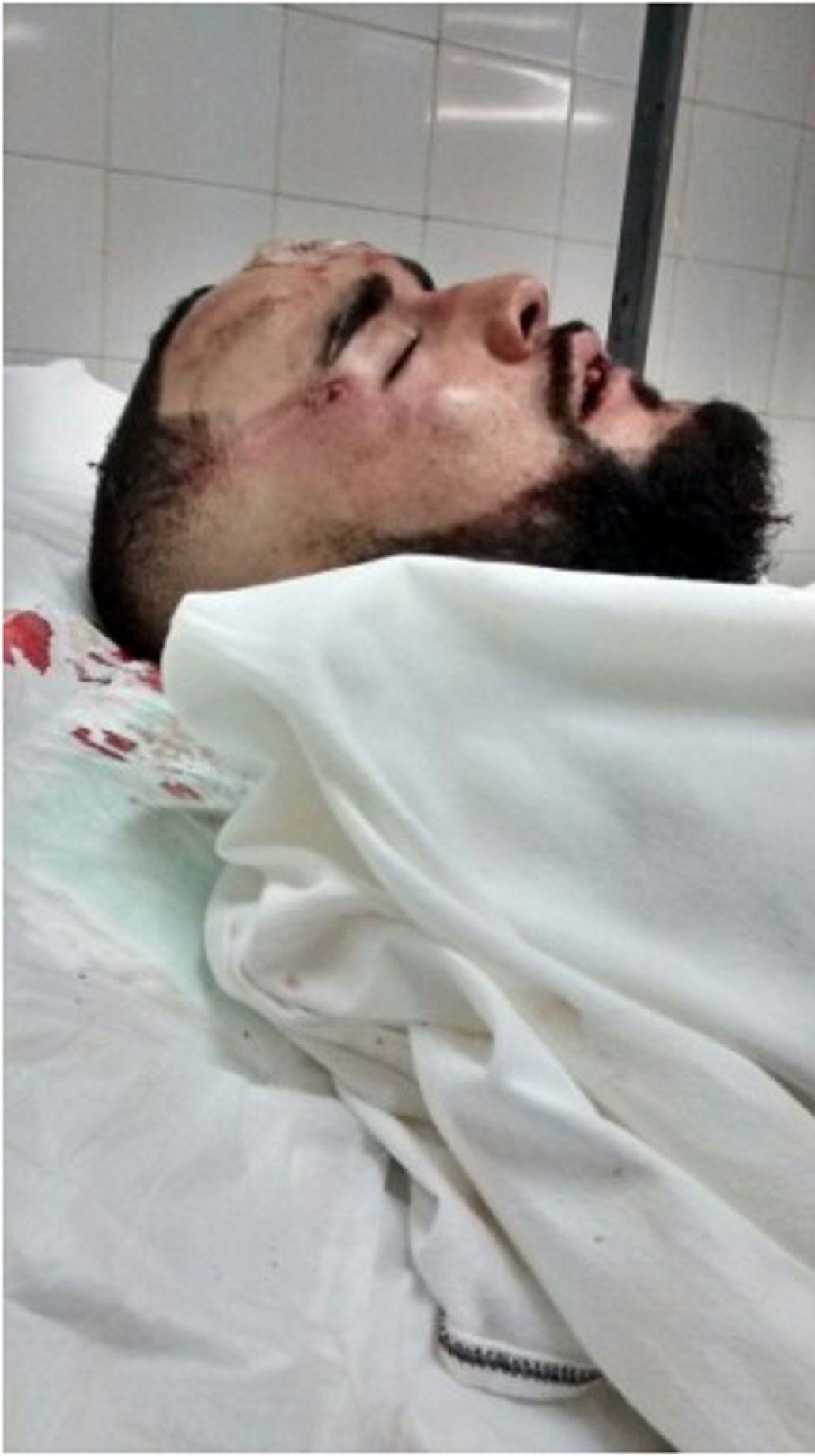Un joven fue brutalmente golpeado por patovicas en un boliche de Provincia