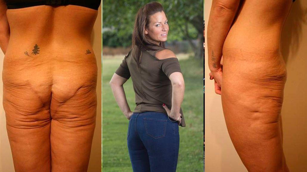 Una mujer se quedó sin cola tras sufrir una mala praxis en la cirugía estética