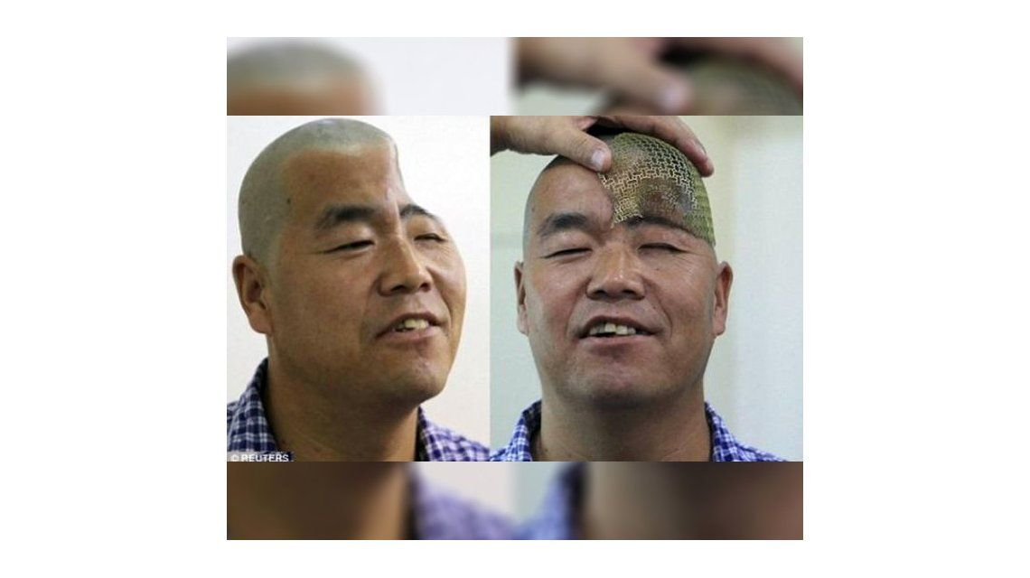 Reconstruirán el cráneo de un hombre con impresoras 3D | Salud