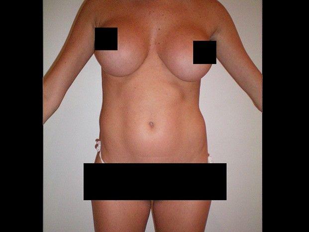 Las fotos de Vicky Xipolotakis antes de la cirugía