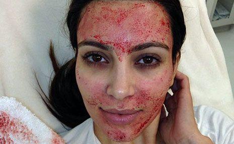 Vampiro facial: nuevo tratamiento de belleza sangriento
