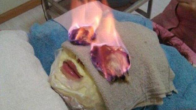 La última tendencia de la belleza: prenderse fuego la cara