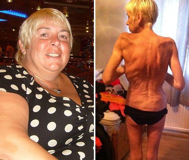 Como adelgazar 20 kilos en dos meses