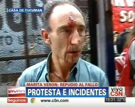 Incidentes en la Casa de Tucumán: hirieron a camarógrafo de C5N