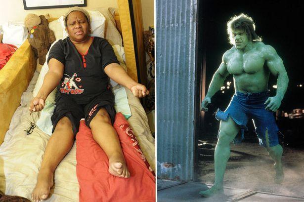 Una mujer se convierte en la Increíble Hulk femenina