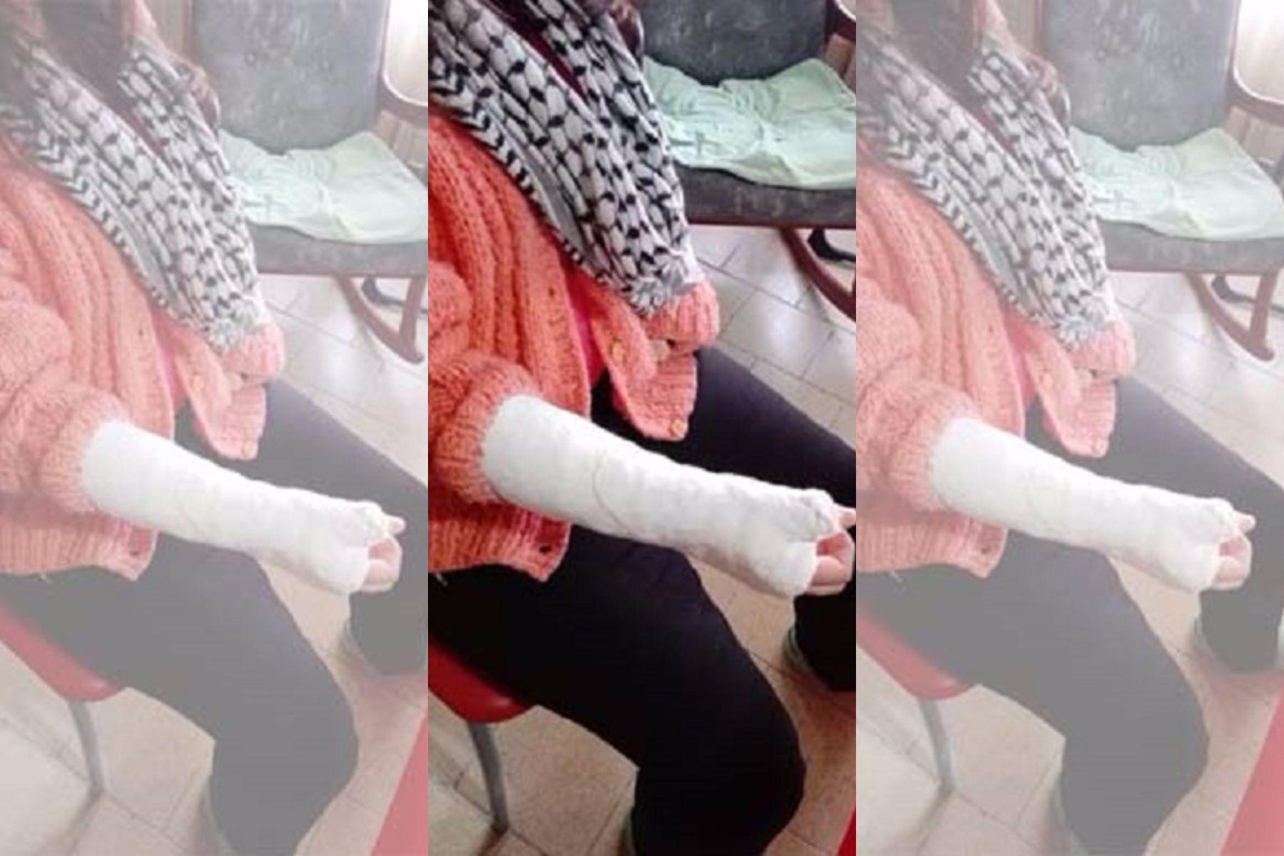 La obligaron a comer pasto y le fracturaron los dedos