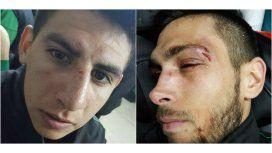 Así terminaron dos jugadores de Villa Mitre de Bahía Blanca