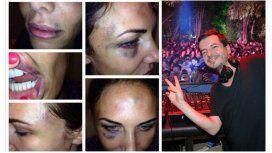 Abigail Blake y Betoko, el DJ que está condenado por golpeador de mujeres