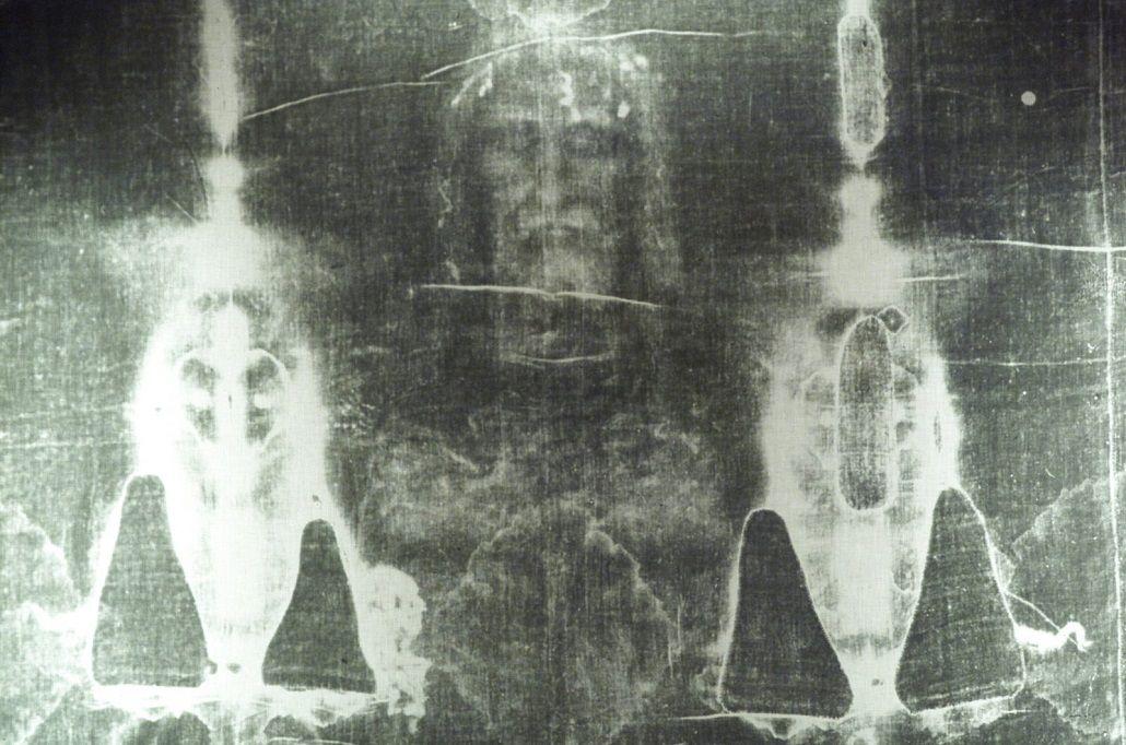 El Santo Sudario tiene sangre de una víctima de tortura