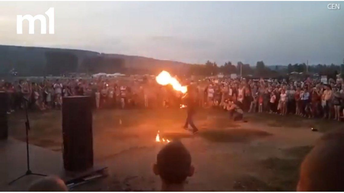 Escupía fuego con la boca y se quemó toda la cara