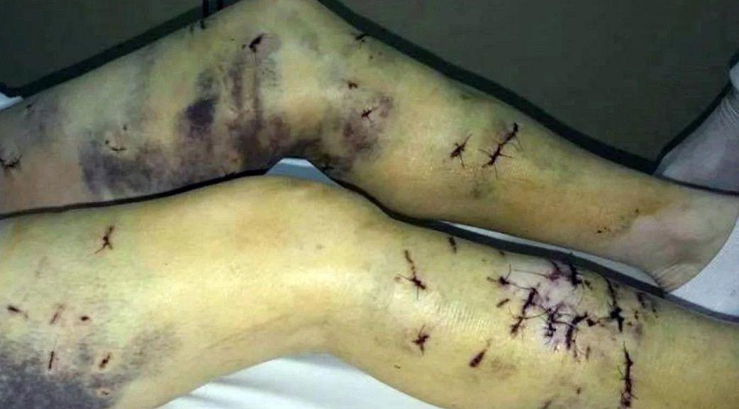Una jauría atacó a una mujer en Ushuaia - Crédito: TN